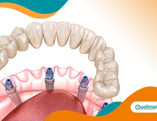 implante dentário total pode ser feito